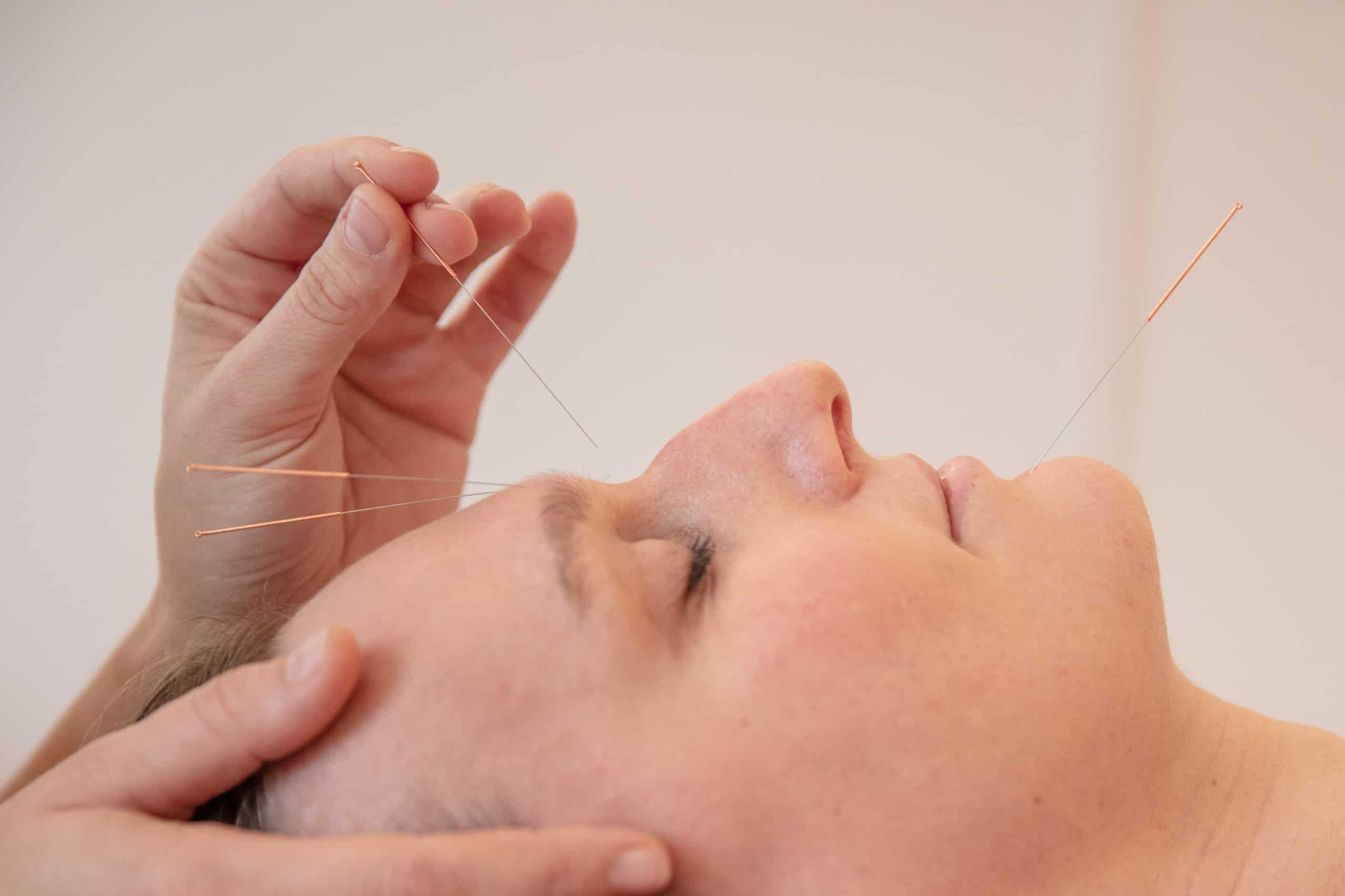 Akupunktur Heilpraktiker Daniela Kaiser Leipzig